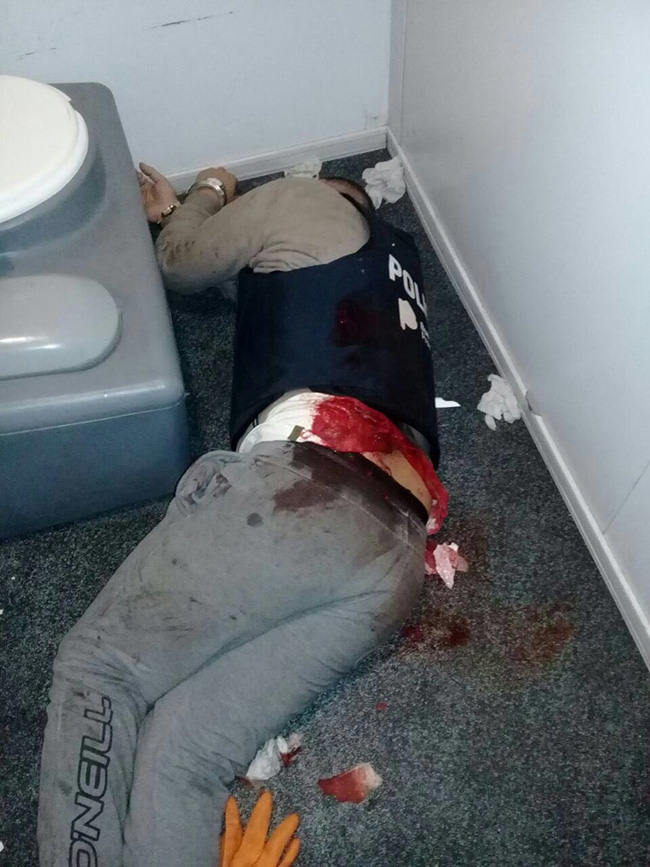 delincuente baleado